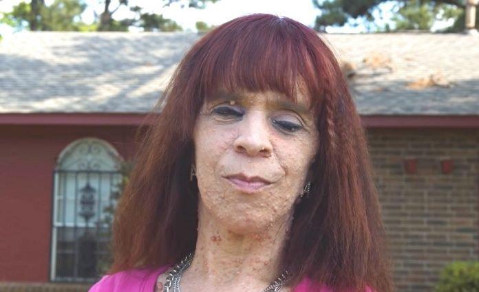 """""""A daganataim nem fertőzőek"""" - mondja a nő, akit sokszor még az utcán is kikerülnek az emberek"""